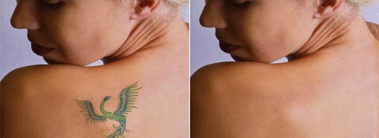 Studio Aline Tattoo Verwijderen met YAG laser